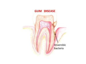 Gum Disease Treatment and Periodontal Care Salisbury MD
